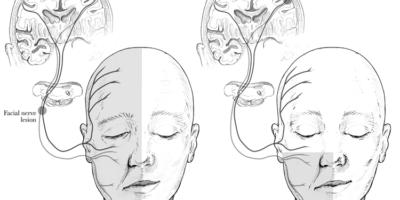 La paralisi di Bell è una paralisi o debolezza dei muscoli su un lato del viso. C'è un danno al nervo facciale che controlla i muscoli sul lato del viso che fa piegare il viso a quel lato