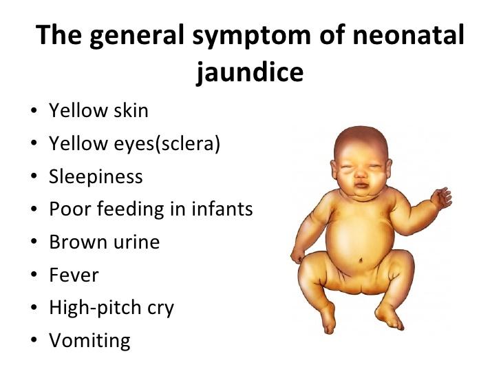 What is Infant Jaundice?   Health Life Media