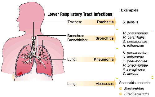 acute-respiratory-infection-bagan