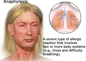 anaphylaxis-1