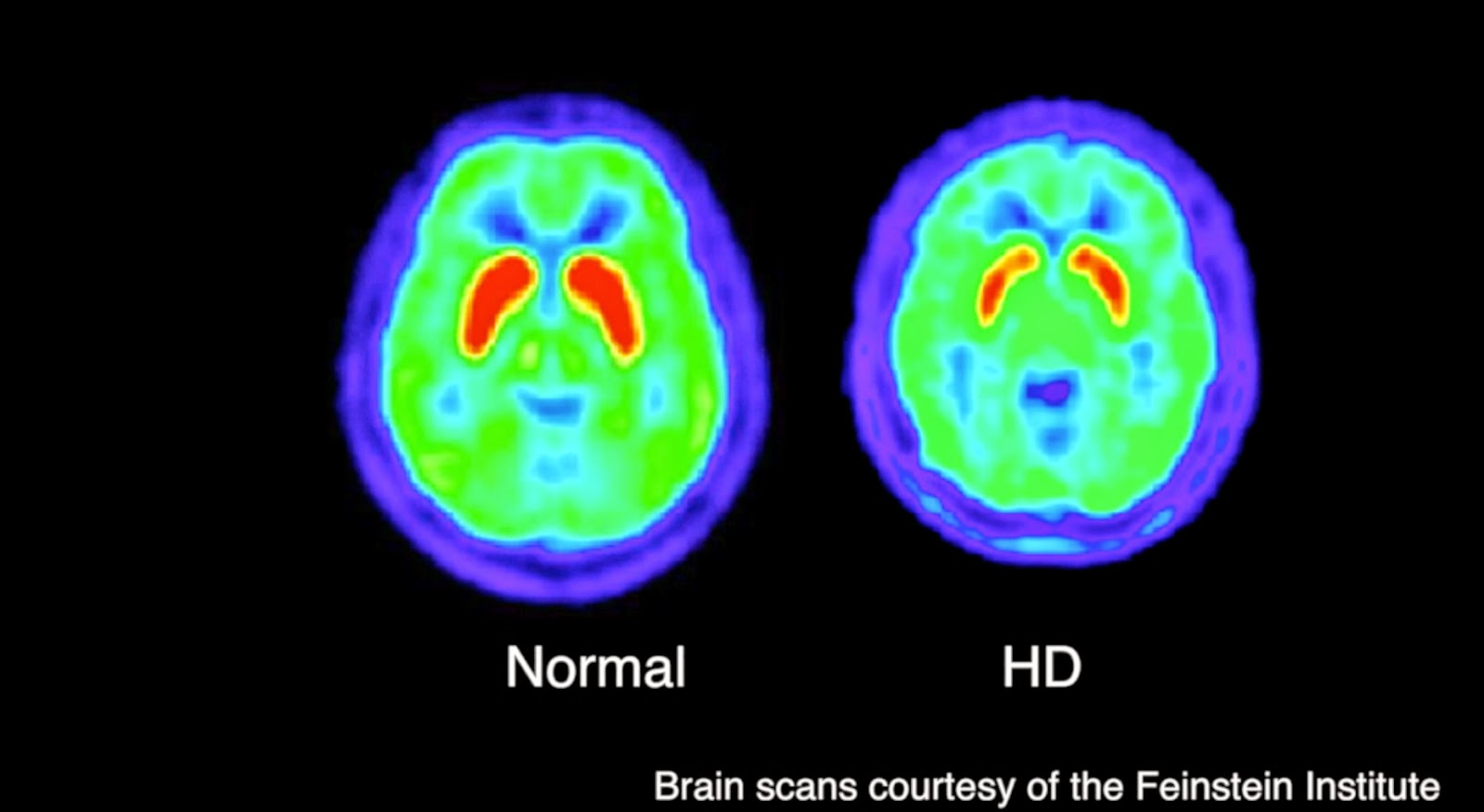 What is Huntington\'s Disease (HD) | Health Life Media