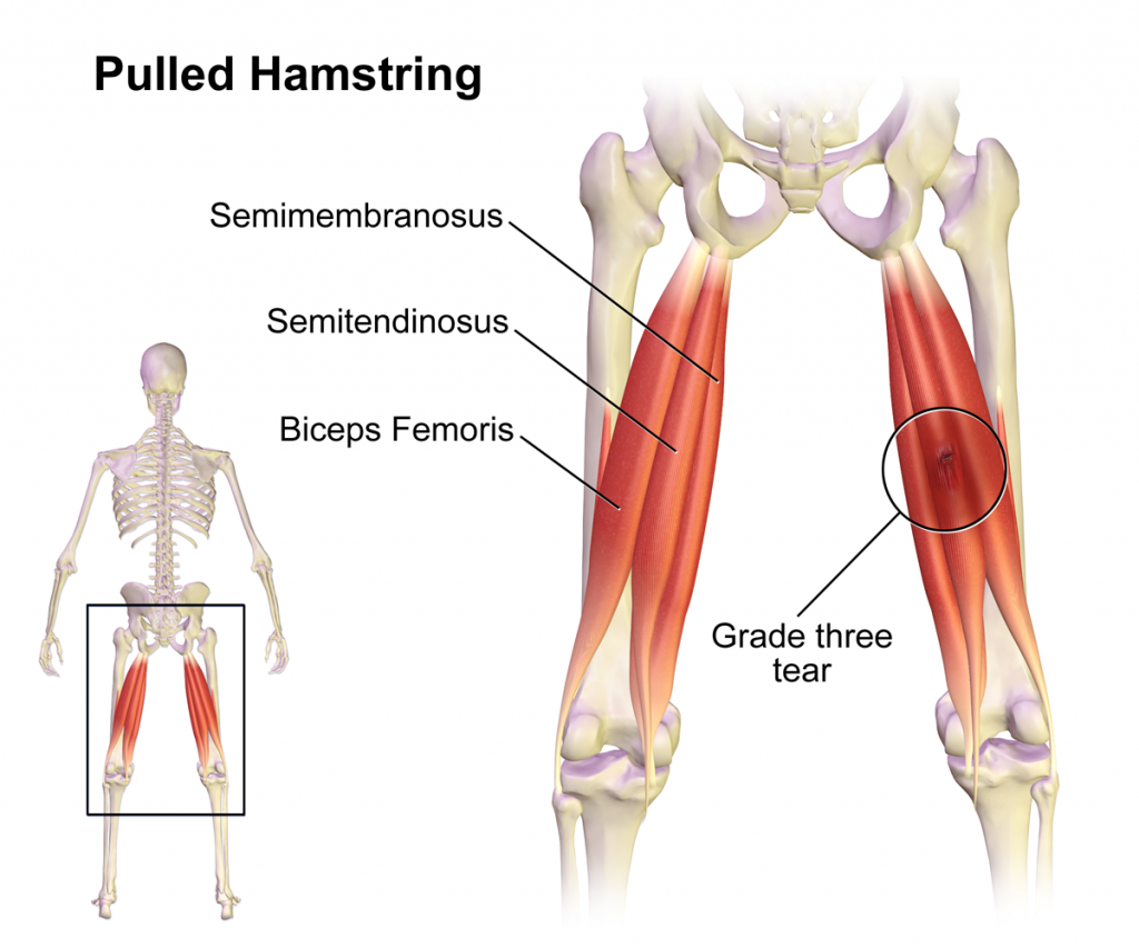Sport und Fitness Injury: gezogen Hamstring – Health Life Media