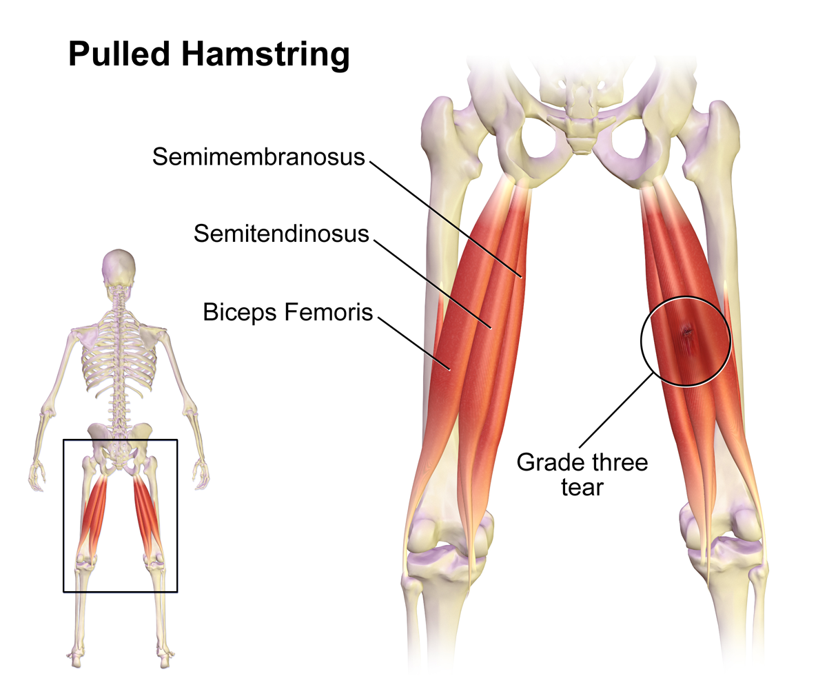 Sports And Fitness Injury Pulled Hamstring Health Life Media