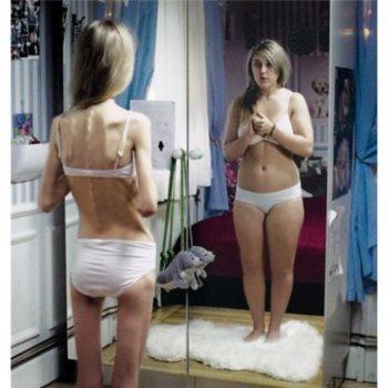 Проект анорексия