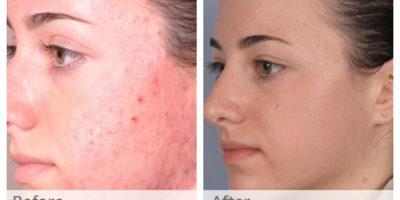 chemische huidschil, acne chemische schil, acne prouducts, acne schil, zure schil