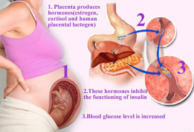 gestational-diabetes-mellit
