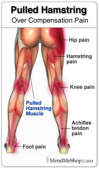 Sports and Fitness Injury: Pulled Hamstring | Health Life ...