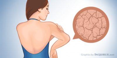 Avere la pelle secca di solito, non è grave. Tuttavia, può essere scomodo e sgradevole. Condizioni di pelle secca gravi e un gruppo di disturbi chiamati ittiosi - questo a volte può essere sconvolgente a causa della deturpazione.