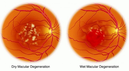 wet-and-dry-macular-degeneration