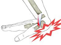 sprain-wrists-1