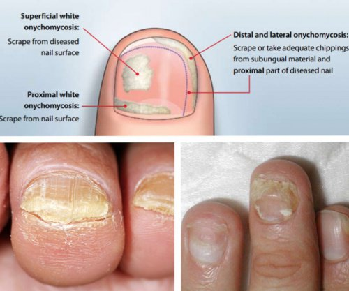 Nail Fungus Is A Common Condition That Beings As White Or Yellow Spot Under The Tip Of Your Fingernail Toenail Fungal Infection Spreads Deeper