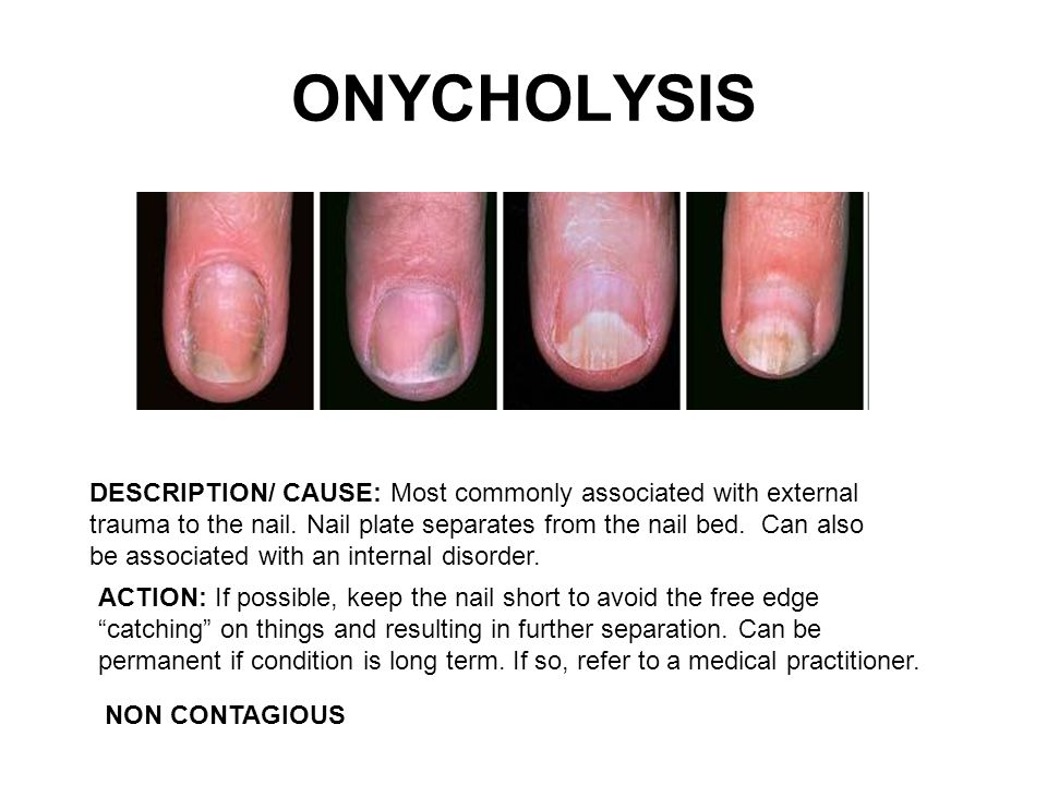 My Nail is Loose (Onycholysis) | Health Life Media