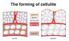 La cellulite può sembrare una condizione medica. Ma la cellulite non è altro che grasso sotto la pelle. Il grasso appare irregolare perché spinge via il tessuto connettivo, provocando la pelle sopra di esso.