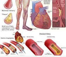 La malattia delle arterie periferiche (chiamata anche arteriopatia periferica) è un problema circolatorio prevalente in cui le arterie riducono il flusso negli arti.
