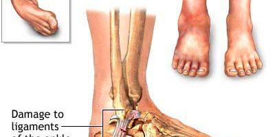 n distorsione alla caviglia traspare quando uno dei legamenti viene strappato alla caviglia. La distorsione della caviglia più comune si verifica sulla porzione laterale o esterna della caviglia