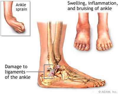 inflammation i benet