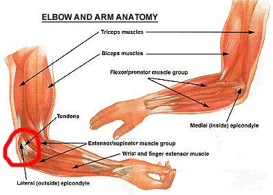 Elbow/Forearm Tendon Ligament Tear | Health Life Media