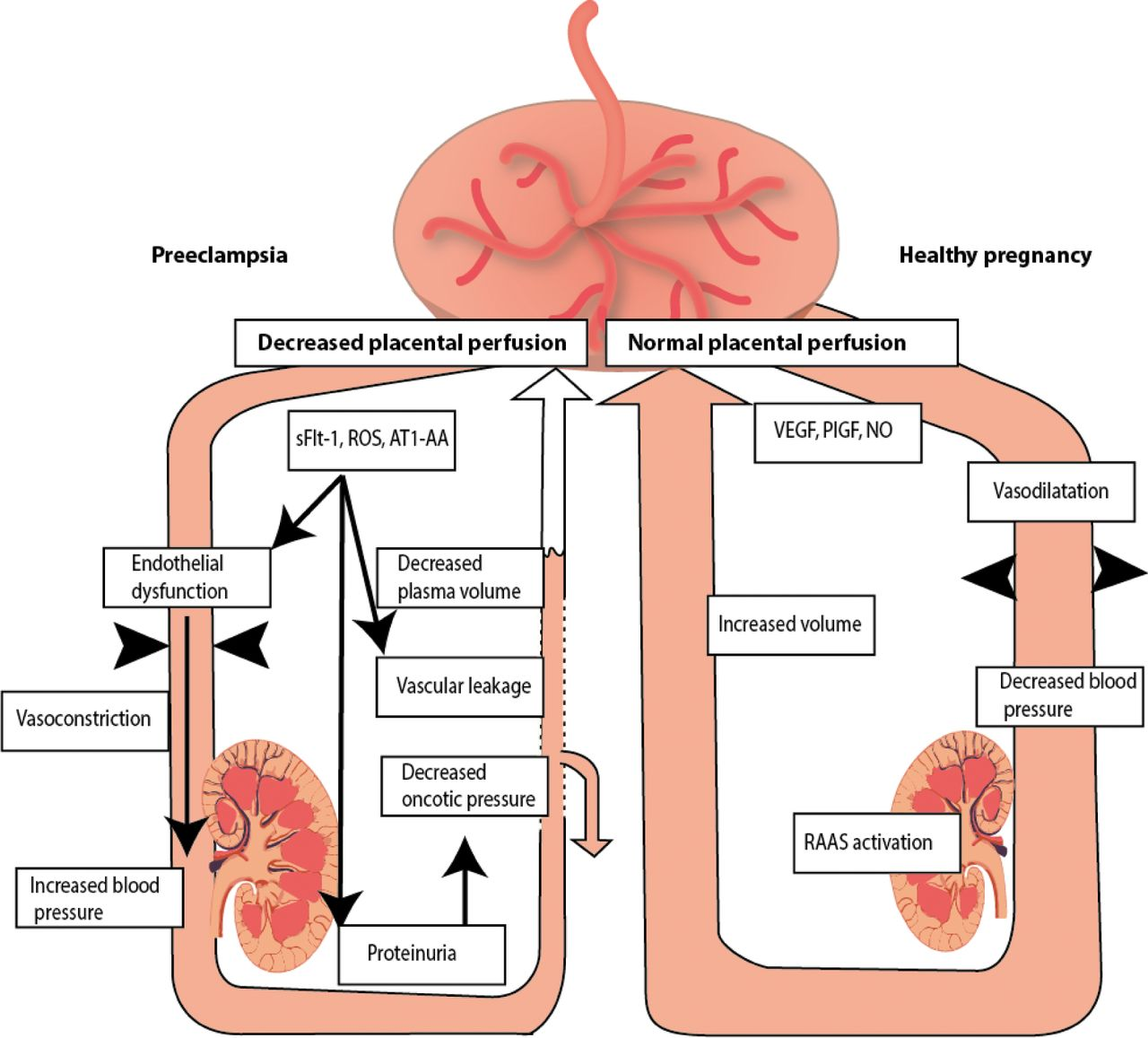 Preeclampsia And Eclampsia Health Life Media