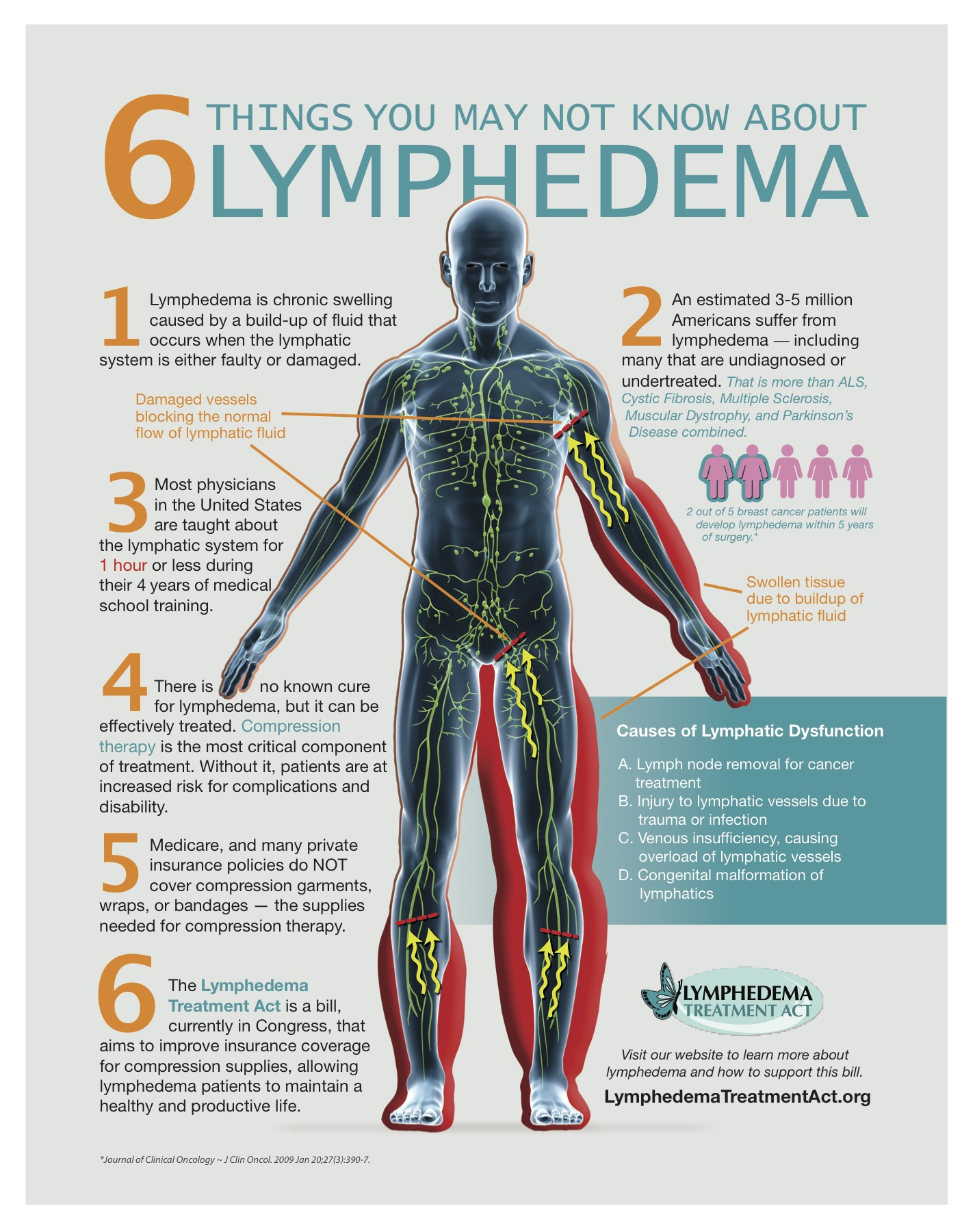 Wat ass Lymhedema? | Gesondheet Life Media