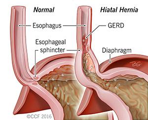 What Is A Hiatal Hernia Health Life Media