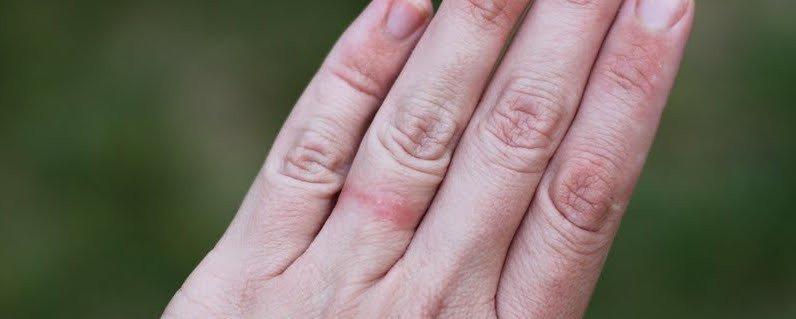 What Is Dermatitis