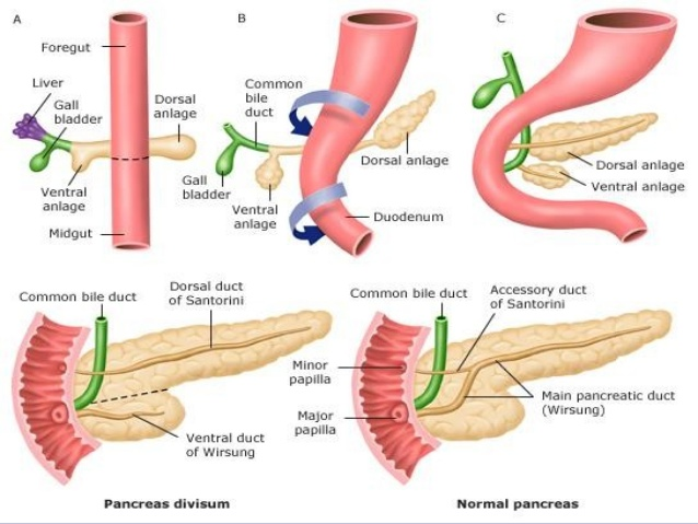What Is a Pancreatic Cyst foto