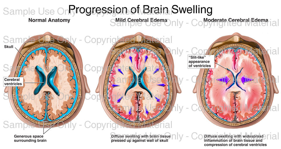 Understanding (Edema) Brain Swelling | Health Life Media