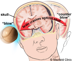 Brain Swelling After Car Accident