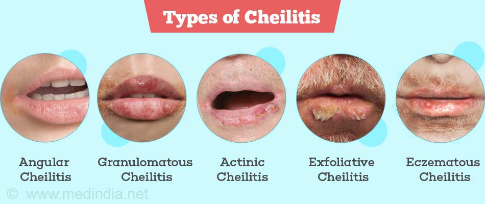 what is actinic cheilitis health life media