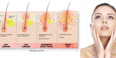 L'acne generalmente si sviluppa su viso, collo, petto, schiena e braccia. Questi aspetti dell'epidermide hanno l'olio che è la maggior parte delle ghiandole (sebacee). L'acne si verifica quando i follicoli di capelli si ostruiscono con l'olio e l'epidermide che è morta.