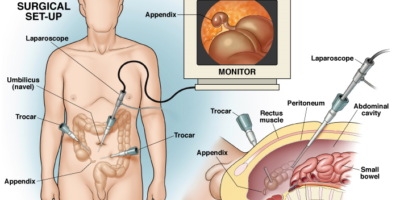 appendicectomie