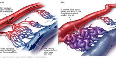 Solitamente, le arterie trasportano l'aria nelle correnti sanguigne che viaggiano attraverso il cuore di una persona fino al cervello, e le vene trasportano il flusso sanguigno con meno ossigeno lontano dal cervello e di nuovo nel cuore.
