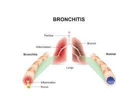 Bronchite è un gonfiore del rivestimento dei tubi che sono bronchiali che trasportano l'aria da e verso i polmoni. Quelli che hanno la bronchite solitamente tossiscono muco addensato, e questo può essere scolorito. La bronchite è cronica o acuta.