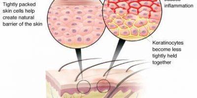 dermatite atopique