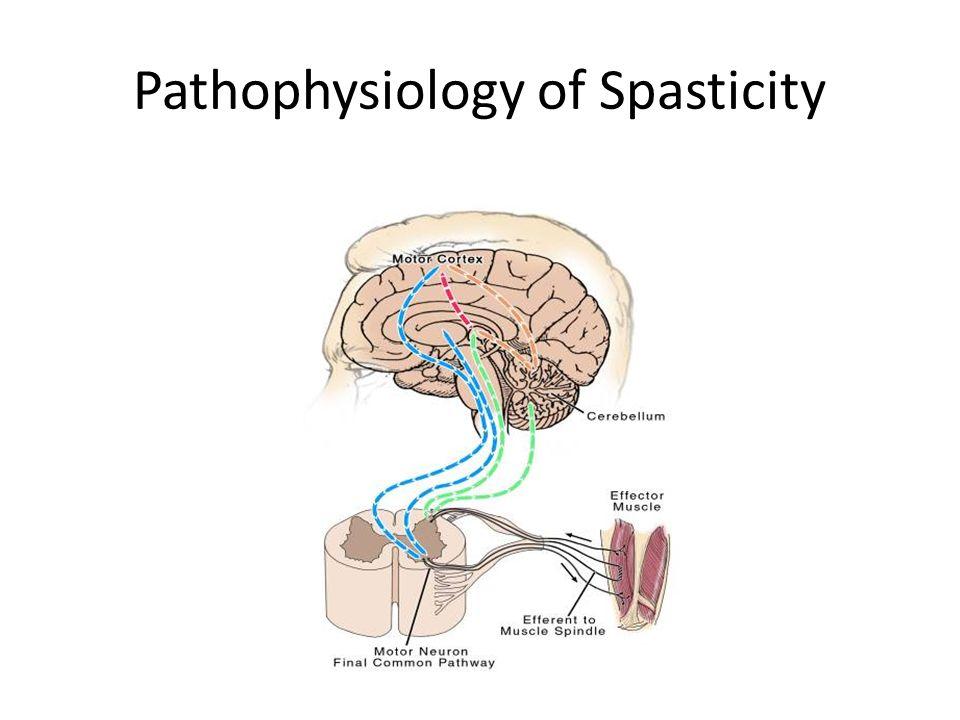 Wat is Spastisiteit? | Gesondheid Life Media