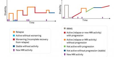 Gli individui con sclerosi multipla secondaria progressiva (SPMS) iniziano con un altro tipo di SM - sclerosi multipla recidivante-remittente.