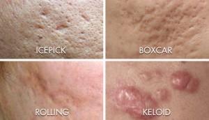 Peau d'acné