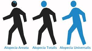 Alopecia Universalis (AU) è una condizione che si distingue per l'intera perdita di pelo sul corpo e sul cuoio capelluto. È una forma più rara e progredisce nel tipo di alopecia areata, un disturbo che produce chiazze rotonde di perdita di capelli.