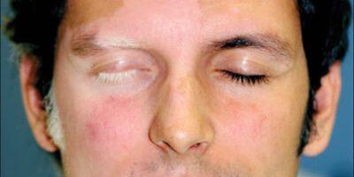 Vitiligine (vit-ih-LIE-go) è una malattia che produce la perdita del colore della pelle a chiazze. L'entità e il tasso di perdita di colore dalla vitiligine sono casuali, quindi è difficile sapere dove colpirà il corpo. Può influenzare la pelle in qualsiasi area del tuo corpo. Può anche influire sui capelli e sulla pelle all'interno della bocca.