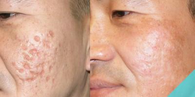 Qual è il miglior trattamento per le cicatrici da acne?