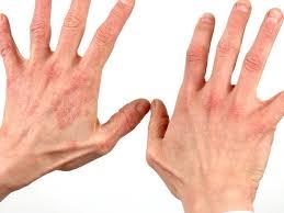 Le reazioni allergiche al lattice possono essere gravi e in rare occasioni possono essere fatali. Se si soffre di allergia al lattice, è necessario limitare o evitare la possibile esposizione ai prodotti in lattice.