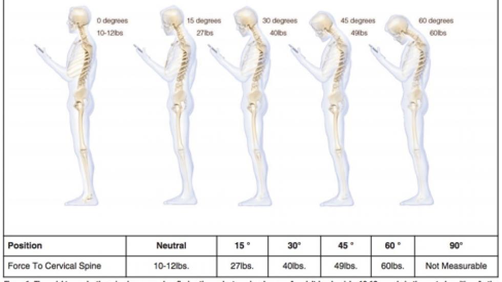 목 꺽임, 만성 목 통증, 목, 목 및 어깨 통증, 목 통증, 어깨 통, 어깨 통증
