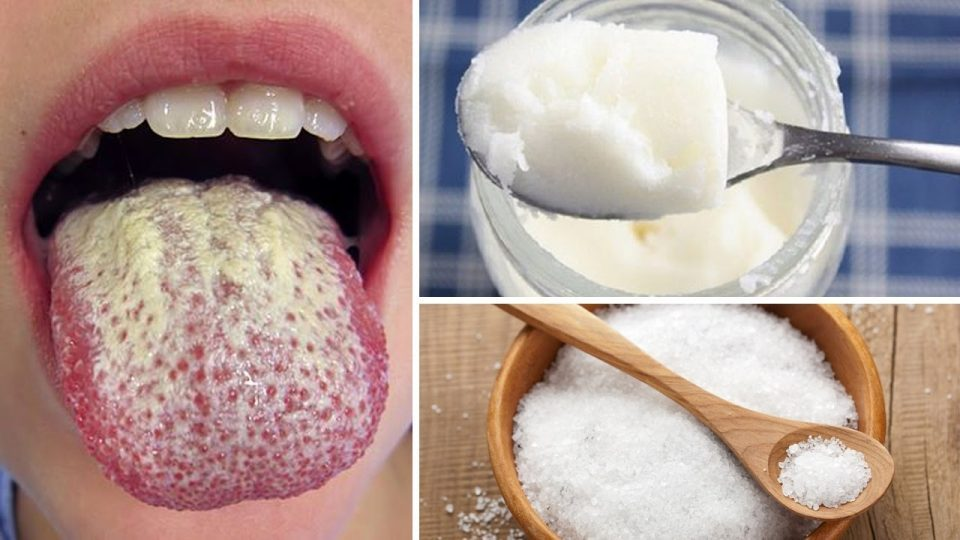 Thrush (candidosi orofaringea) è una patologia patologica in cui un fungo di lievito denominato Candida albicans cresce all'interno della gola e della bocca.