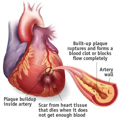 Esistono due cause principali delle arterie coronarie intasate: