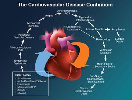 hartaanval, cardiovasculaire ziekte, ischemische beroerte