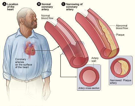 È fondamentale per voi controllare i livelli di colesterolo nel sangue per assicurarsi che siano entro i limiti di sicurezza. Misurando il colesterolo, puoi prevenire malattie cardiache, attacchi di cuore e coaguli di sangue.