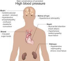 highbloodpressure