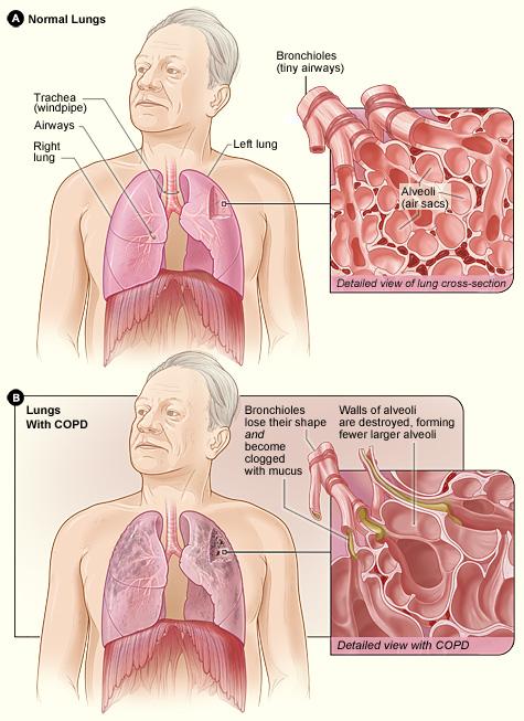 Chronische obstructieve longziekte, emfyseem, chronische bronchitis, COPD die COPD ontwikkelt, COPD-symptomen, rookziekten
