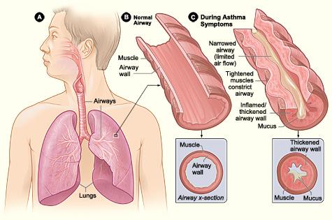 astma, astma-aandoening, astma symptomen, heb ik astma