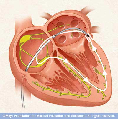 Cardiac catheter ablation